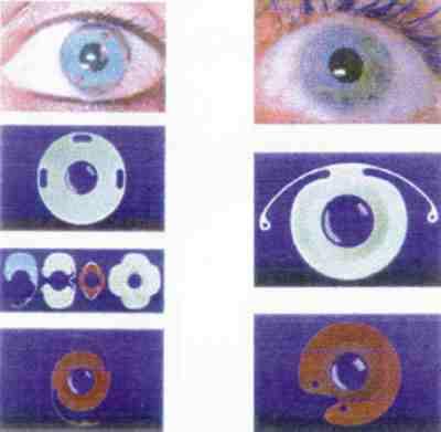 Afaquia hipertensión ocular